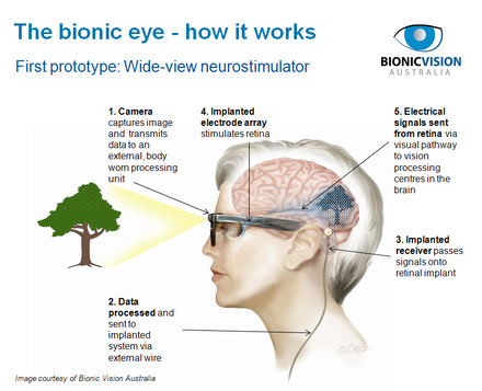 How the bionic eye works